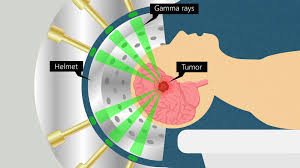 stereotactic therapy best for brain