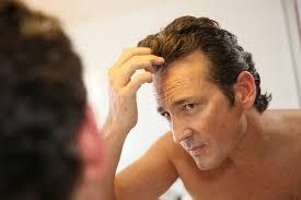 the genetics of male pattern baldness