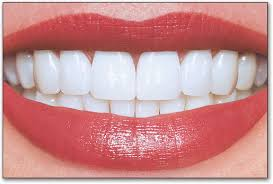 Image result for good set of teeth