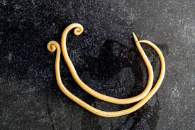 Ascariasis Roundworms Ascariasis Causes Symptoms And Treatment