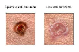 Image result for basal cell carcinoma