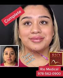 gorgeous <b>sexy lips</b> Before/After... - Rio Medical Aesthetics