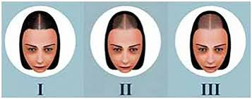 A surgeon removes individual hairs—or a strip of skin with hairs—from one part of your scalp and transplants them to thinning or balding areas. Hair Loss In Women Different Than In Men Now Assured Better Treatment