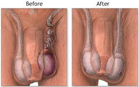 testicular torsion. illustrations: a b testicular torsion o