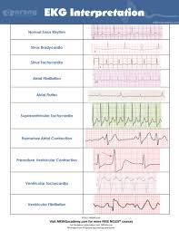 Telemetry Heart Rate Chart Interpret Ekgs Strips Like A Boss Ekg Interpretation For