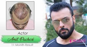 hair transplant cost in jaipur best