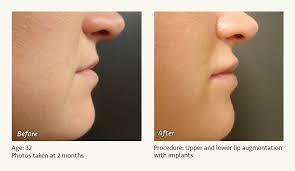 lip augmentation in plano dallas tx