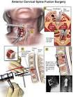 vernauwing nek symptomen