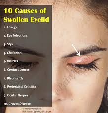10 Causes of Swollen Eyelid & Its Treatment