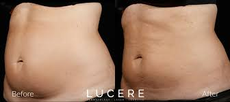 Contour Light Body Sculpting Before And After Sculpsure Edmonton Double Chin Removal Fat Reduction