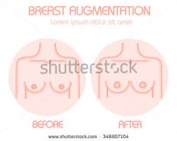 Breast augmentation  Vector modern style