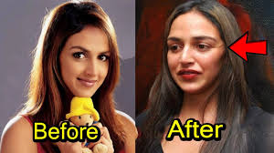 top 8 plastic surgery disaster of bollywood actress 2017