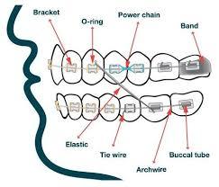 Dentaltown Orthodontic Armamentarium Dental Cosmetics