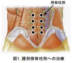 「Pudendal nerve electroacupuncture for lumbar spinal canal stenosis - a case series.」の画像検索結果