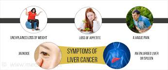 Liver Tumor Size Chart Liver Cancer Types Causes Symptoms Diagnosis Treatment