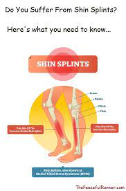 do you have shin splints here s what