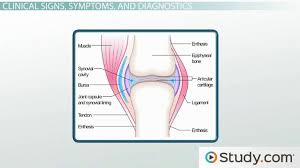 Marfan Syndrome Signs And Management