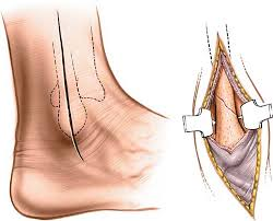 Lateral Approach To The Lateral Malleolus Musculoskeletal Key