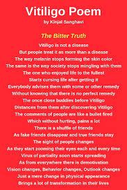 Vitiligo Diet Chart In Hindi Vitiligo Poem By Kinjal Sanghavi She Is A Vitiligo Warrior
