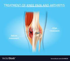 Knee Pain And Arthritis Treatment Chart