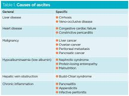 Hcv Waiting List Position Chart Ascites Symptoms Causes Treatment Nursing Times