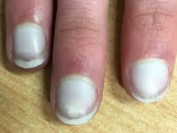 نتيجة بحث الصور عن Diseases cause nail color change
