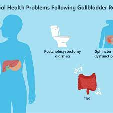 gallbladder removal what to eat for