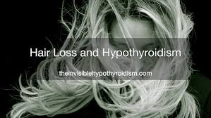 hypothyroidism and hair loss