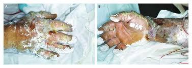 Hydrofluoric Acid Burn Nejm