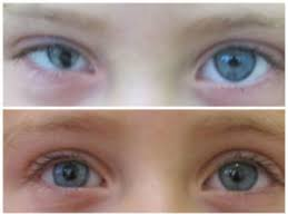 Microphthalmia - Baby Born With <b>Small Eye</b> - Artificial <b>Eyes</b> ...
