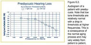Audiogram Chart Blank Audiometry And Hearing Disorders Hear1002 Flashcards Quizlet