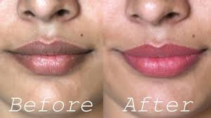 home remes for dark upper lips