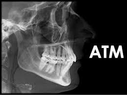 Resultado de imagen de articulación temporomandibular en la resonancia magnética