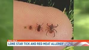 Doc Talk   Lone star tick and red meat allergy   WHP