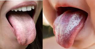 thrush causes prevention and