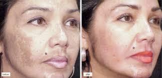 Pigmentvlekken gezicht verwijderen dermatoloog