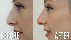 5 minute nose job non surgical rhinoplasty carly musleh