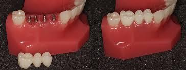 Dental Bridges | Dentist in Owasso, OK