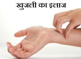 Khujli Ka Desi aur Gharelu ilaj - खुजली के घेरुलू उपाय