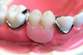 部分 入れ歯 奥歯 2 本