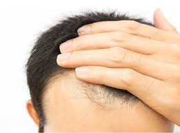 hair loss pariser dermatology