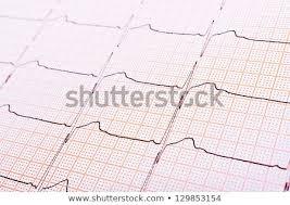 Heart Rhythm Chart Background Usage Stock Photo Edit Now