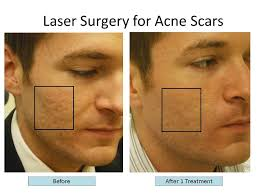 laser surgery for acne scars
