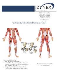 Tens Machine Pad Placement Chart Zmpczm016000 12 13 Hip Electrode Placement Chart