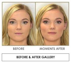 blush before and after. all before and after photos are representative examples. blush