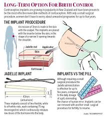 birth control implant how it works sciblogs how the contraceptive implant works infographic