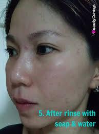 lactic acid 40 percent after