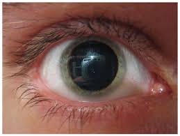 Eyes On Drugs Chart 15 4 Drugs That Affect The Autonomic System Anatomy And