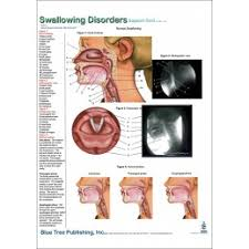 Larynx Chart Swallowing Disorders Anatomical Chart