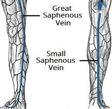 Consent High Tie And Stripping Varicose Veins